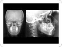 Telerradiografias ou Cefalométricas