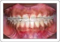 Ortodontia Fixa com Braquetes Cerâmicos