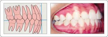 Dentes Encaixados