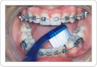Higienização dos Dentes