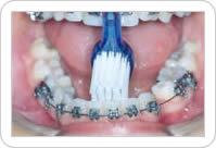 Escovação dos Dentes Inferiores