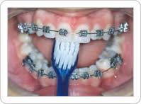 Escovação dos Dentes Superiores