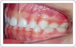 Nomenclatura do Dentes de Leite