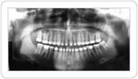 Radiografia Panorâmica
